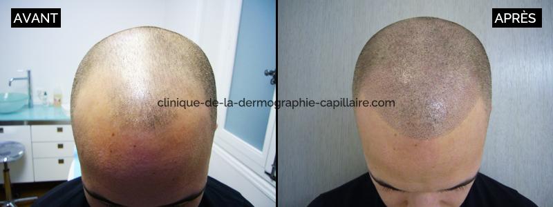 3 effect crane rase homme apres clinique de la dermographie capillaire - Homme crane rase ...