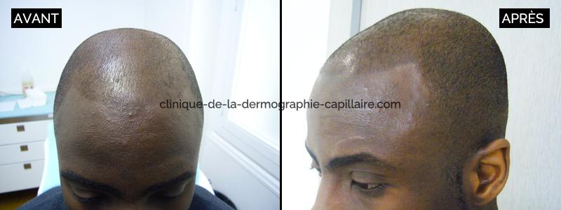 8 1 effet crane rase homme apres clinique de la - Homme crane rase ...